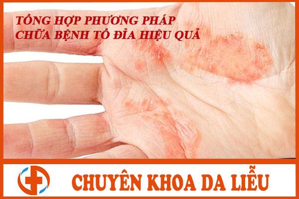 Phuong phap chua benh to dia