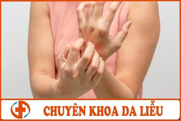benh cham to dia co lay khong